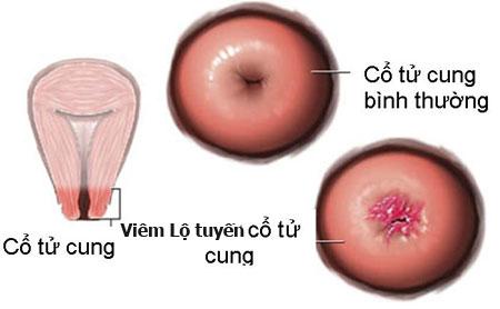 Cách chữa viêm lộ tuyến cổ tử cung bằng Đông Y