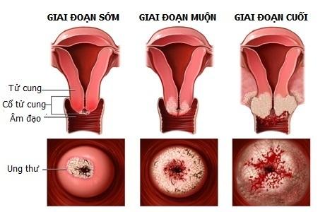 nhận biết viêm lộ tuyến cổ tử cung