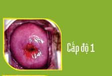 hình ảnh bệnh viêm lộ tuyến cổ tử cung độ 1
