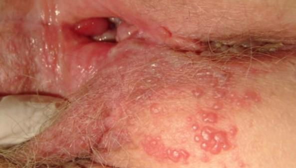 Hình ảnh mụn rộp sinh dục lây lan từ âm đạo sang hậu môn ở nữ giới