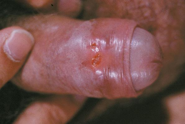 Hình ảnh mụn rộp sinh dục ở bao quy đầu