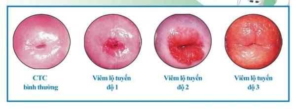 hình ảnh viêm lộ tuyến